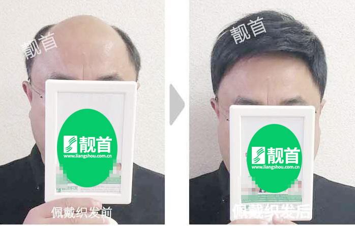 男式-中老年男士假发-效果-店内实拍案例