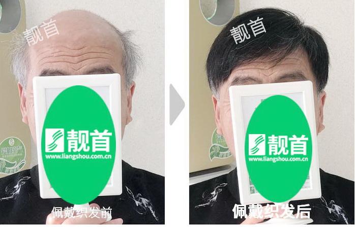 男式-老年假发-效果-案例图片