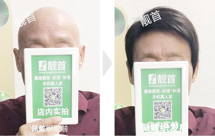 男人-中老年头顶假发片-效果-案例对比图