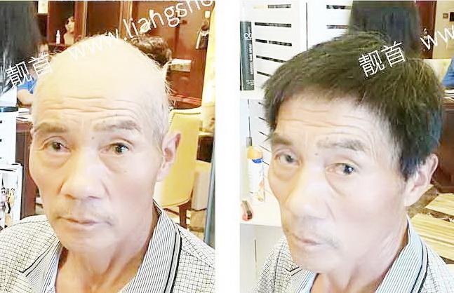男式-中老年假发短发-效果-实拍案例