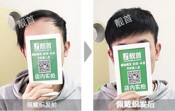 男人-织发织发补发-效果-案例对比图