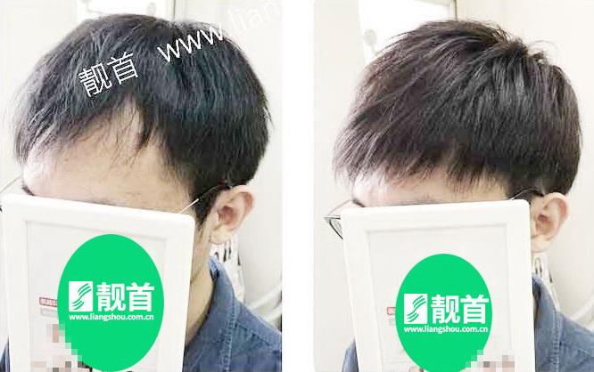 男士-假发真发套-效果-实拍案例