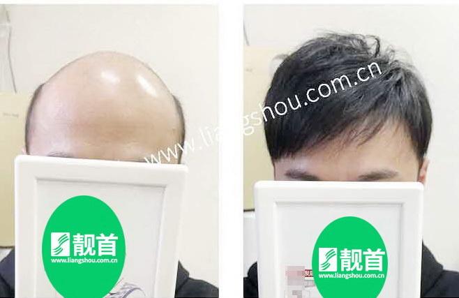 男人-半头套假发-效果-案例对比图