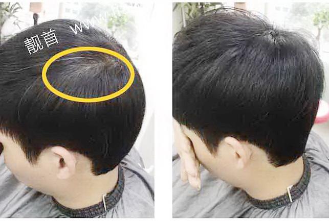 男式-假头发-效果-实拍案例