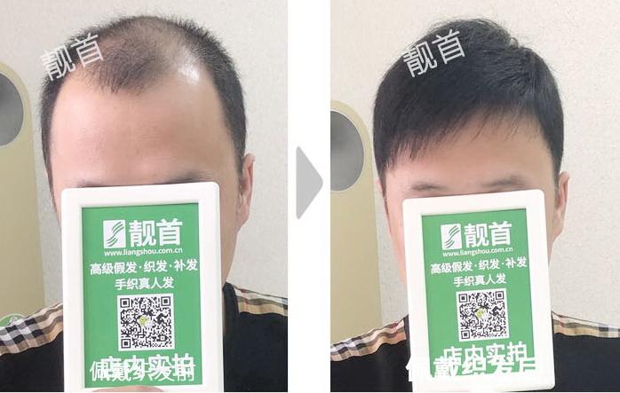 男式-专业定制假发-效果-案例图片