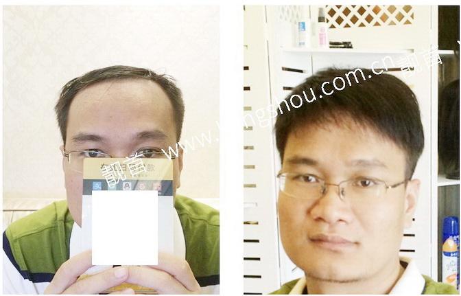 男人-头顶增发-效果-案例