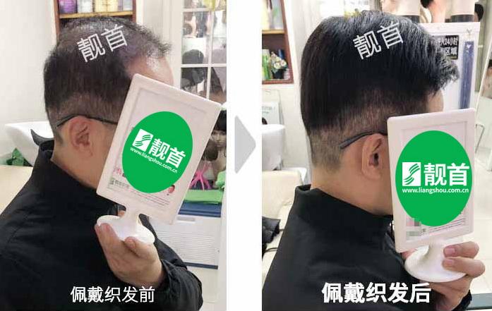 男人-织发补发增发-效果-案例对比图