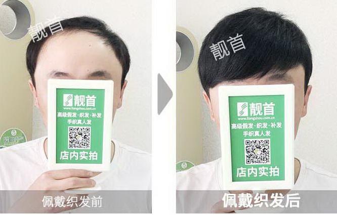 男士-专业补发织发-效果-案例图片