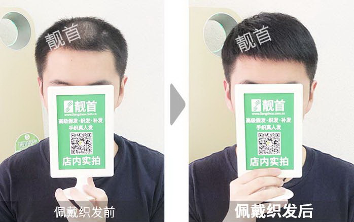 男-织发补发假发-效果-案例对比图