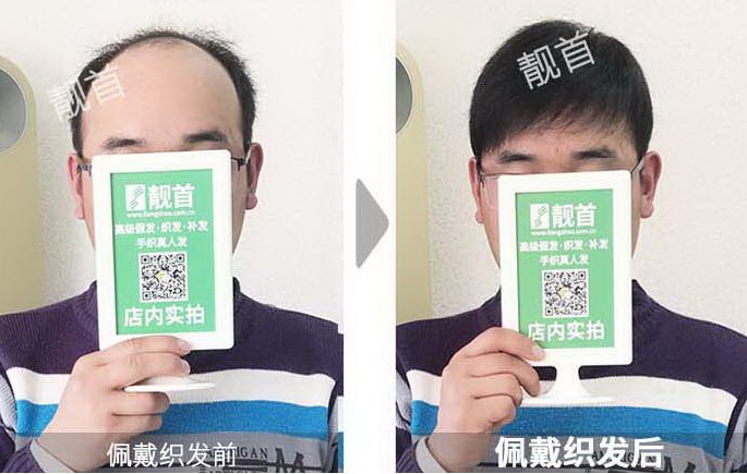男人-脱发补发-效果-案例