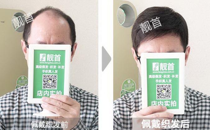男-头顶补发-效果-案例照片