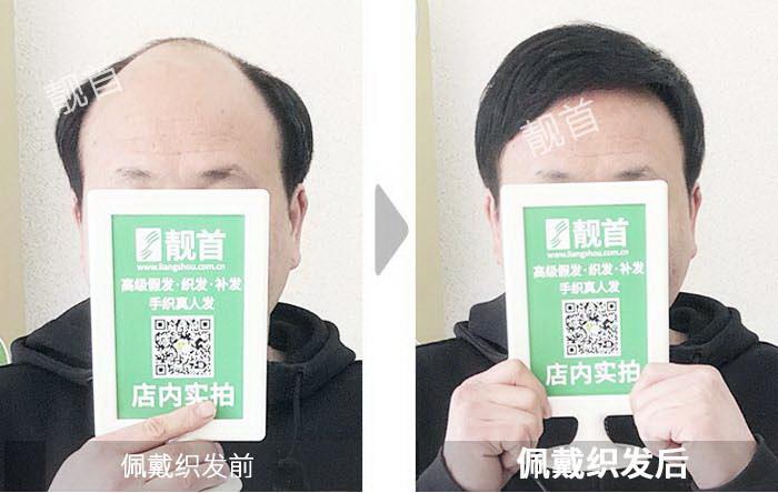 男人-假发头顶补发块-效果-案例对比图