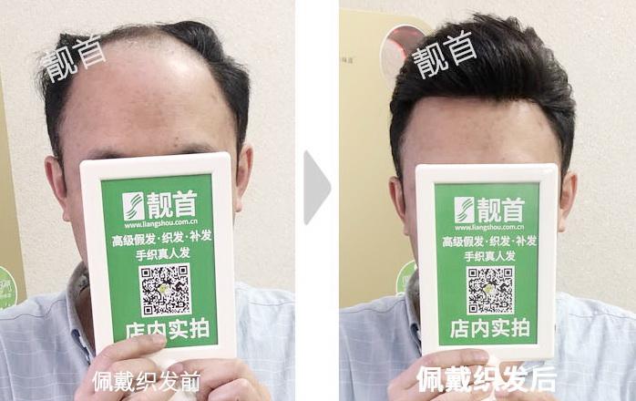 男式-真头发假发套-效果-实拍案例