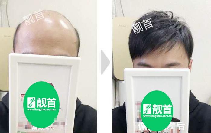 男式-假发头顶发片-效果-实拍案例