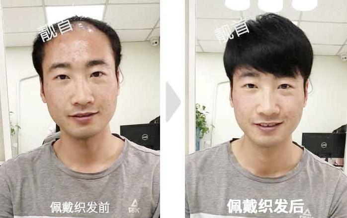 男士-假发真头发-效果-案例图片