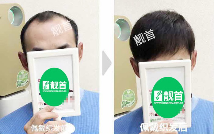 男人-短发假发-效果-案例