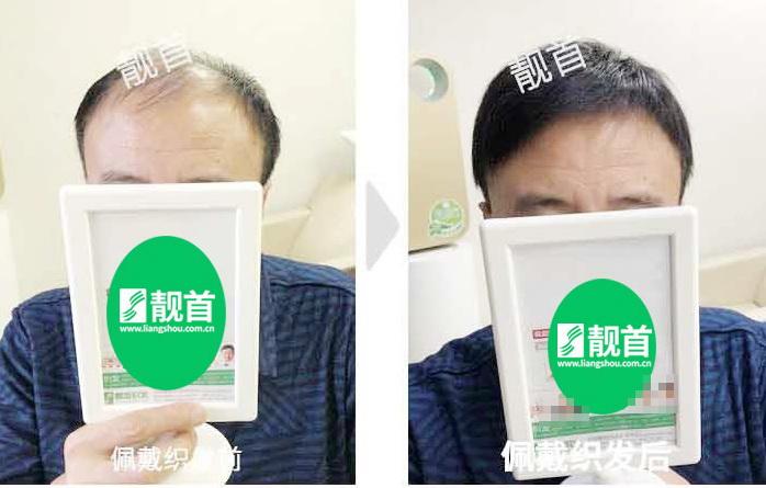 男士-真人发的假发-效果-实拍案例