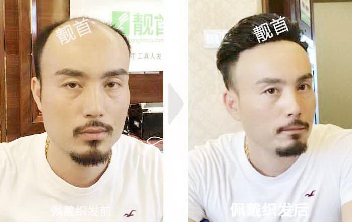 男式-逼真的假发-效果-案例图片