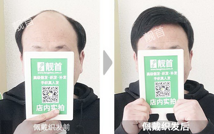 男人-真实的假发-效果-案例照片