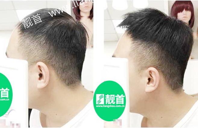 男式-发片假发-效果-实拍案例