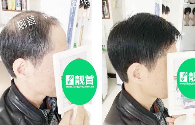 男-无痕假发-效果-案例对比图
