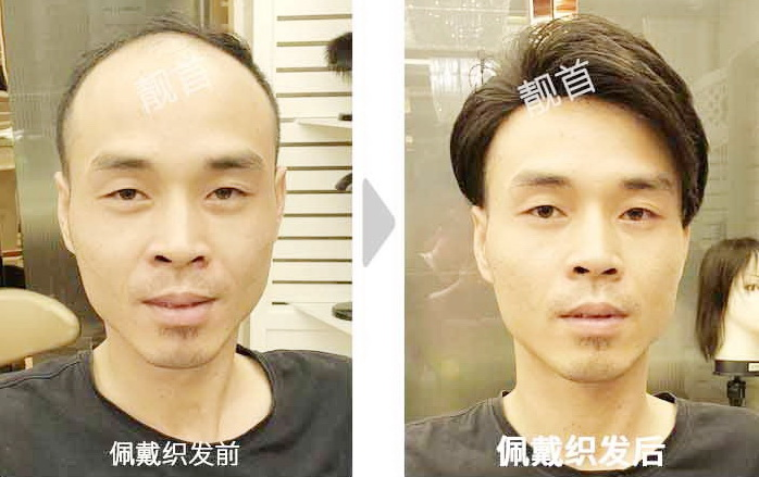 男-真发做的假发套-效果-案例对比图
