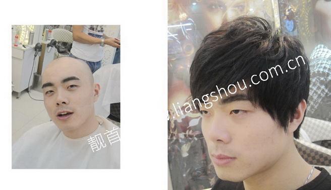 男-增发织发-效果-案例照片