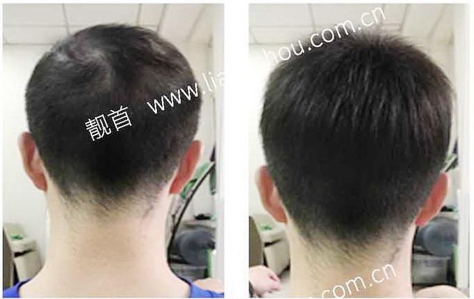 男人-织发-效果-案例对比图