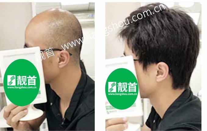 男士-假发织发-效果-店内实拍案例