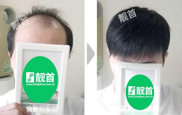 男-补发织发-效果-案例