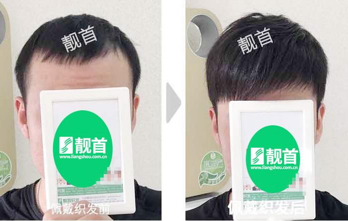 男士-头顶假发-效果-案例图片