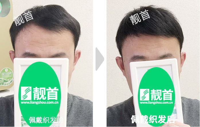 男-头顶补发片-效果-案例对比图