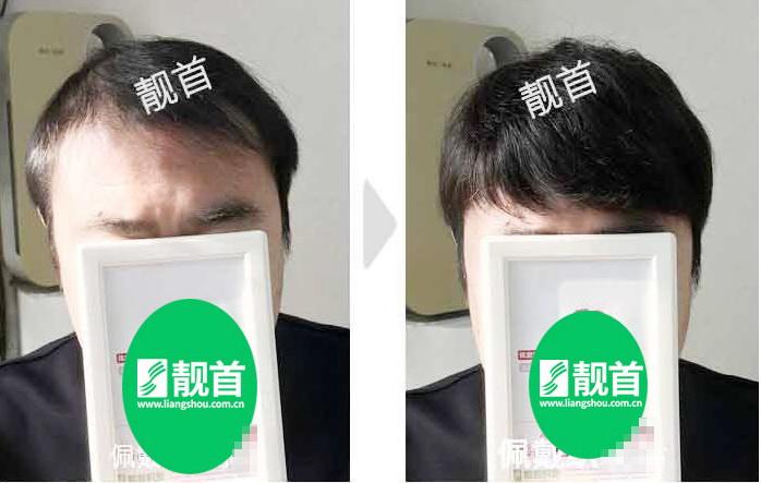 男人假发-效果-案例对比图