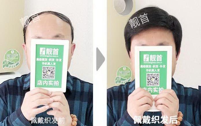 男士-秃顶假发片-效果-实拍案例