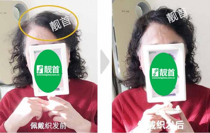 女式-中老年假发-效果-案例照片