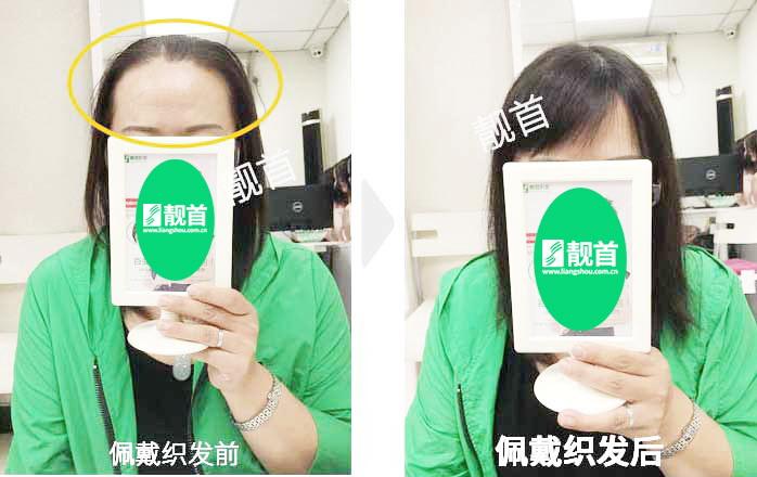 女人-遮白发假发片-效果-案例图片