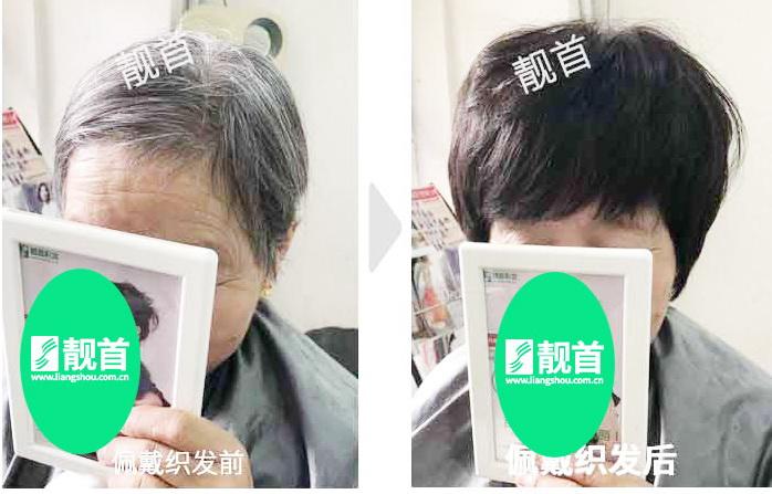 女性-中老年头顶假发片-效果-案例对比图