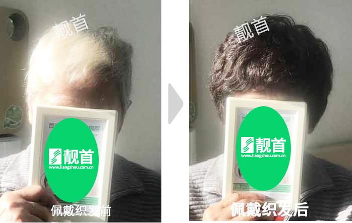 女式-中老年假发片-效果-案例