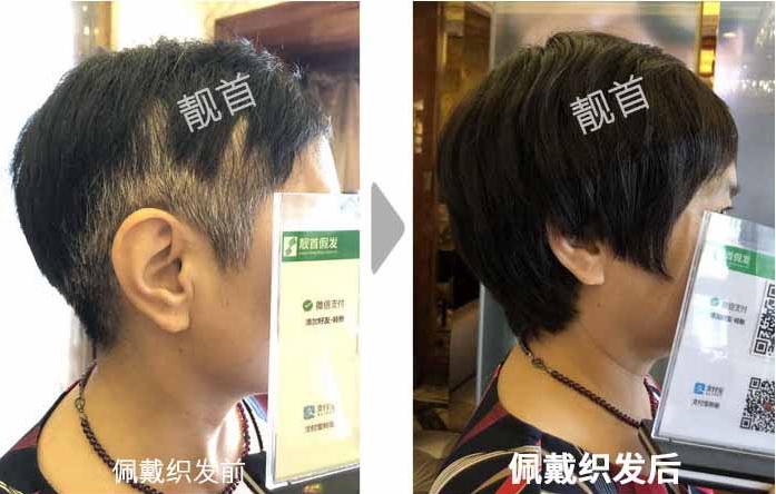 女人-中老年假发短发-效果-实拍案例
