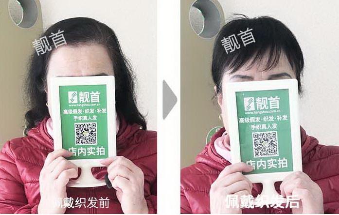 女士-中老年假发套-效果-实拍案例