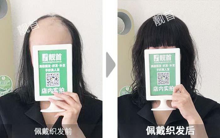 女式真发假头套-效果-案例