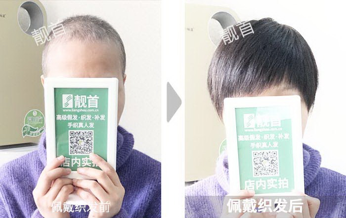 女性真人假发织发补发-效果-案例照片