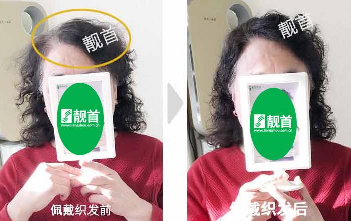 女性假发真人发-效果-案例对比图