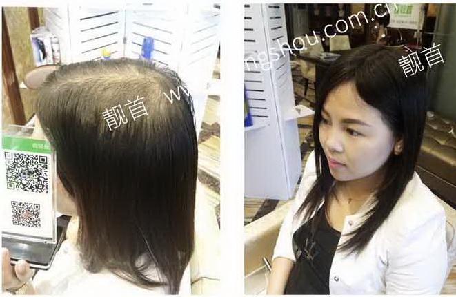 女人最逼真的假发-效果-店内实拍案例