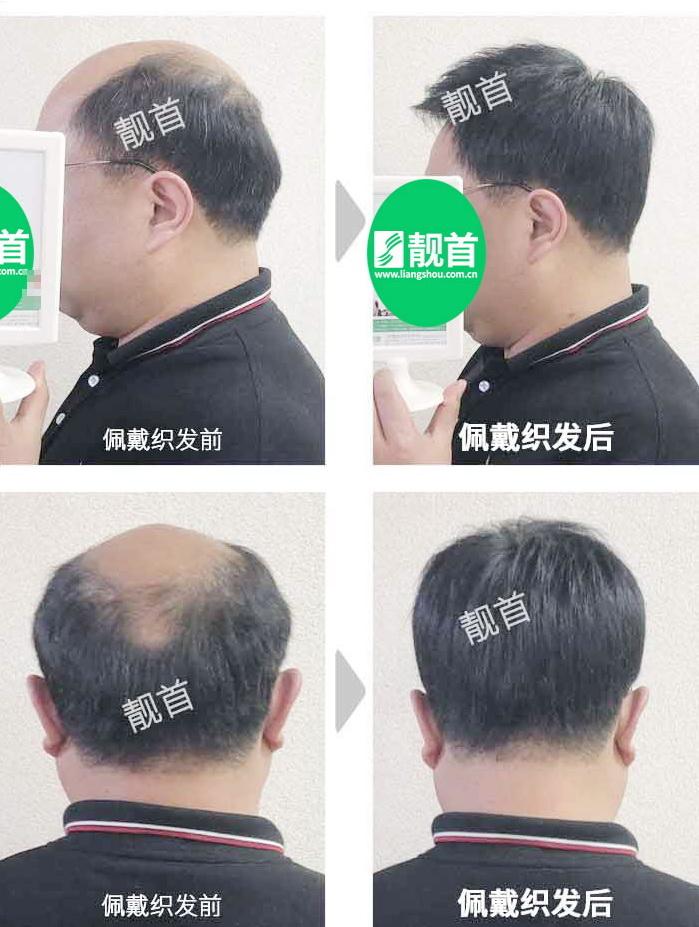男-中老年假发-效果-案例照片