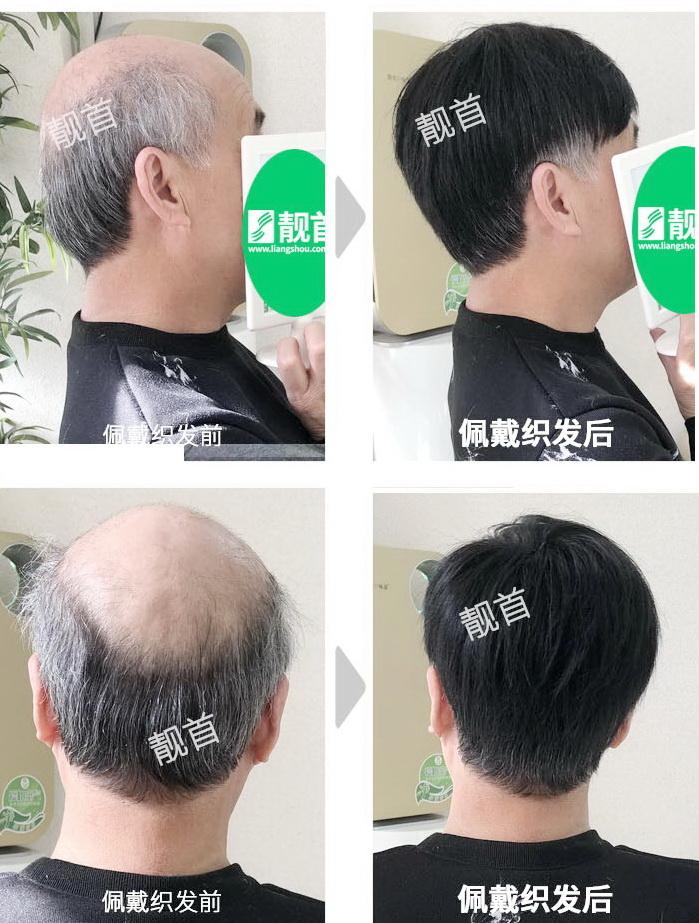 男人-中老年男士假发套-效果-案例