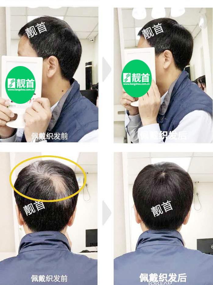 男人-中老年假发套短发套-效果-案例照片