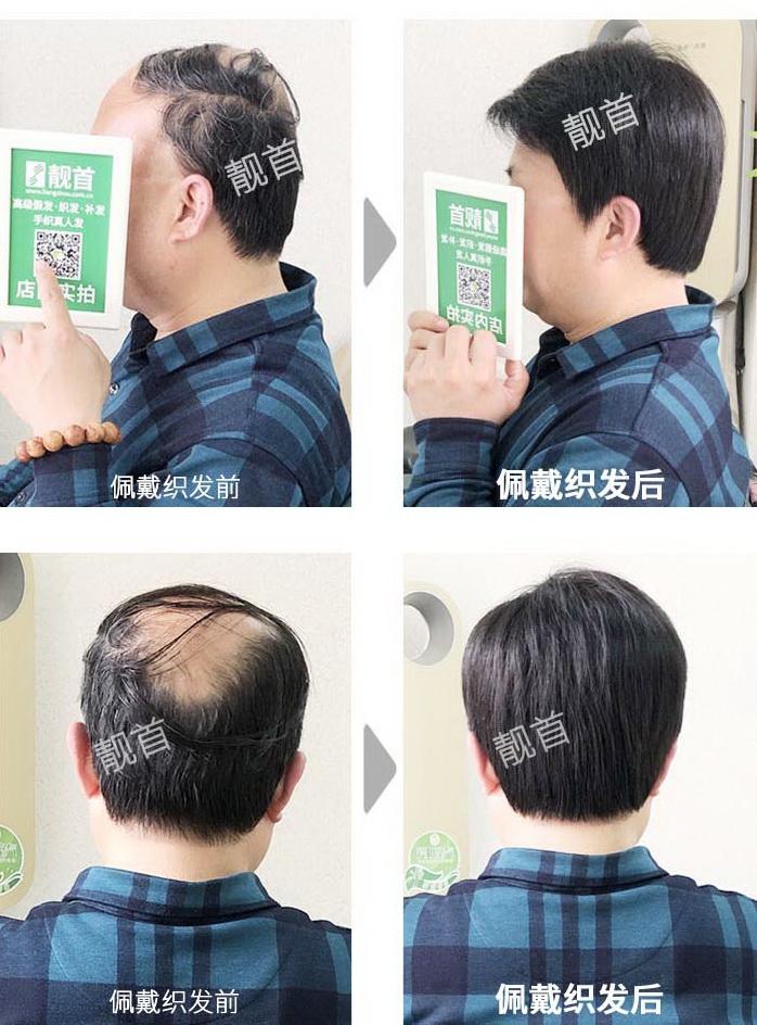 男士-老年人假发套-效果-案例图片