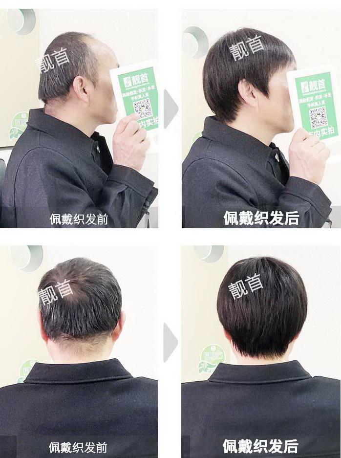 男士-中老年假发套-效果-实拍案例