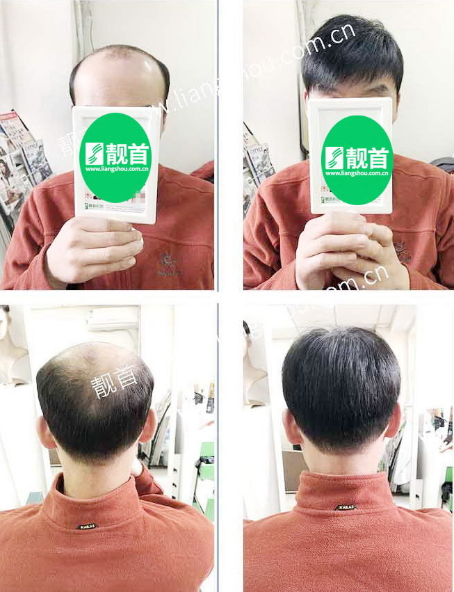 男性假发-效果-实拍案例